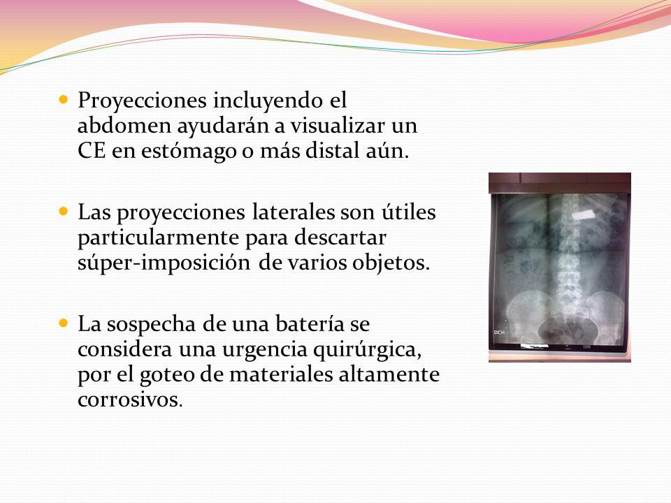 Proyecciones incluyendo el abdomen ayudarán a visualizar un CE en estómago o más distal aún. Las proyecciones laterales son útiles particularmente par