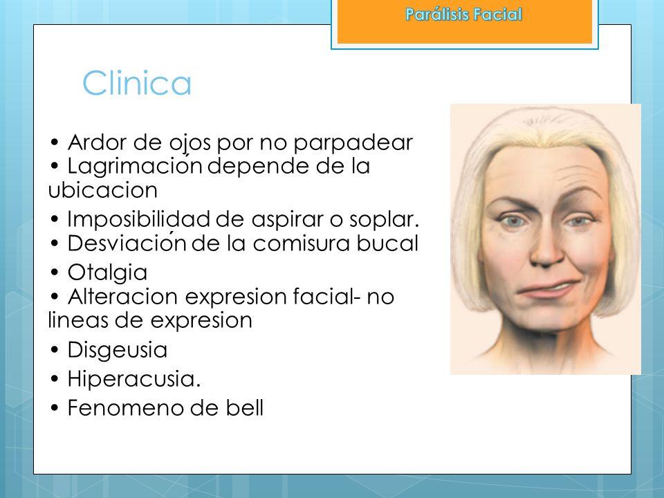 Clinica Ardor de ojos por no parpadear Lagrimacion depende de la ubicacion Imposibilidad de aspirar o soplar. Desviacion de la comisura bucal Otalgia