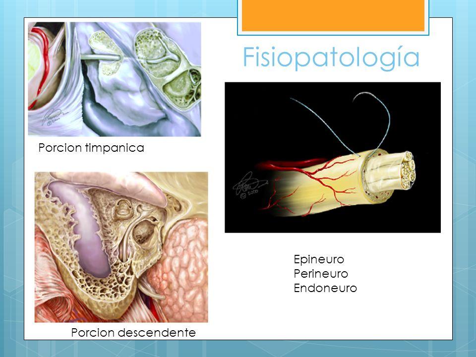 Fractura del hueso temporal Longitudinal: Hipoacusia conductiva Otorrea con sangre 80% de estas fracturas 20% da parálisis En debilidad parcial: observación Considerar cirugía