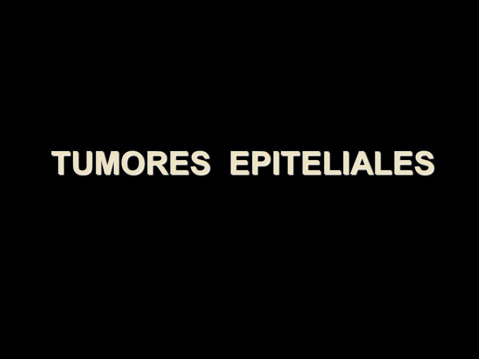 TUMORES EPITELIALES