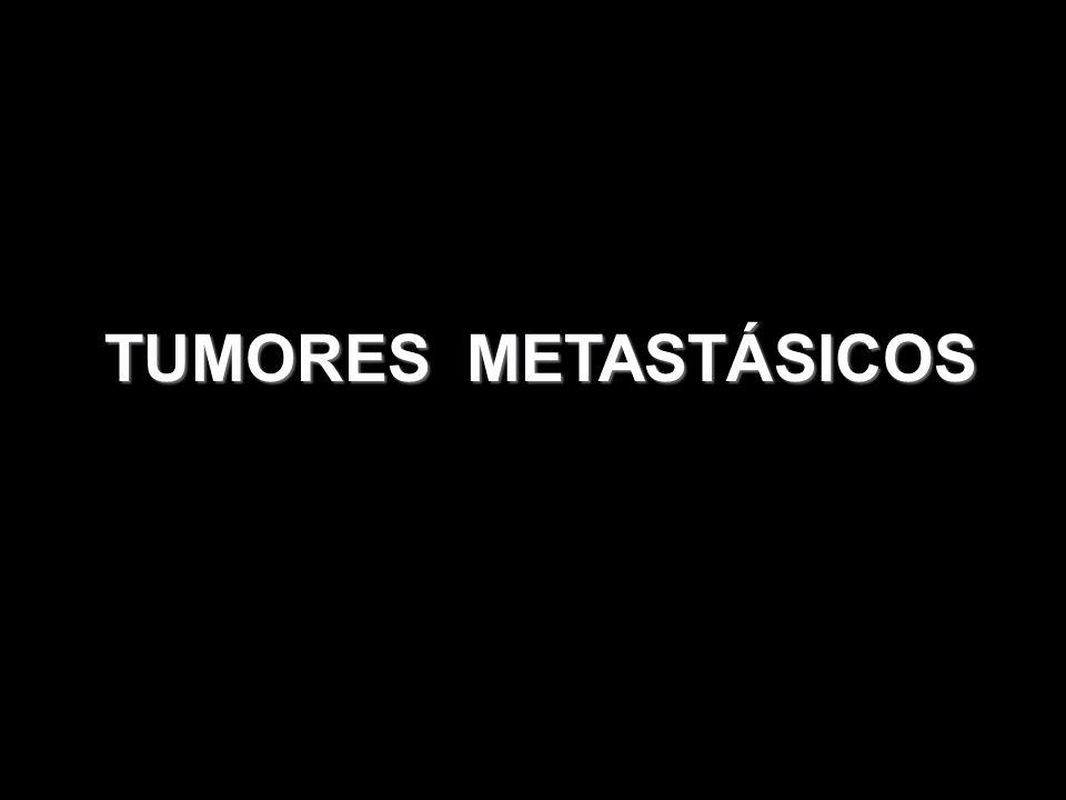 TUMORES METASTÁSICOS