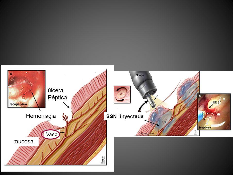 úlcera Péptica Hemorragia mucosa SSN inyectada Vaso