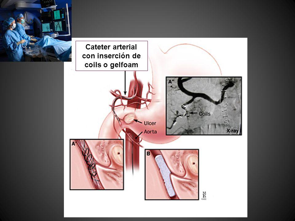 Cateter arterial con inserción de coils o gelfoam