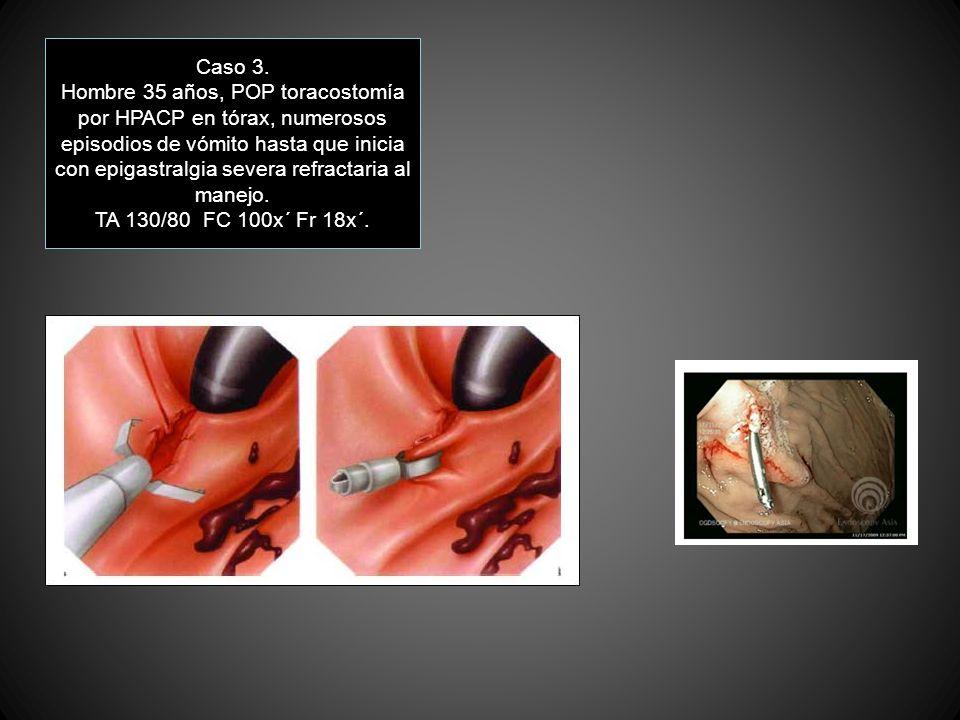Caso 3. Hombre 35 años, POP toracostomía por HPACP en tórax, numerosos episodios de vómito hasta que inicia con epigastralgia severa refractaria al ma
