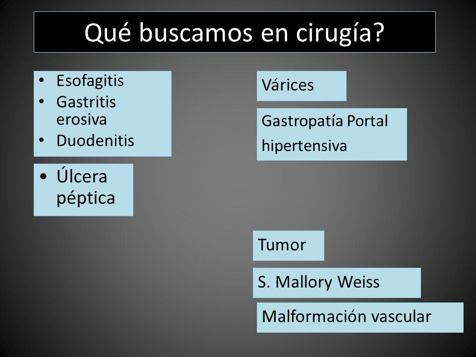 Qué buscamos en cirugía? Úlcera péptica Esofagitis Gastritis erosiva Duodenitis Várices Gastropatía Portal hipertensiva S. Mallory Weiss Malformación