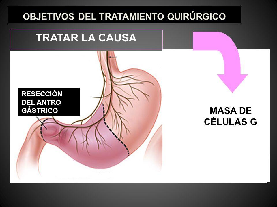 OBJETIVOS DEL TRATAMIENTO QUIRÚRGICO TRATAR LA CAUSA RESECCIÓN DEL ANTRO GÁSTRICO VAGOTOMÍA MASA DE CÉLULAS G
