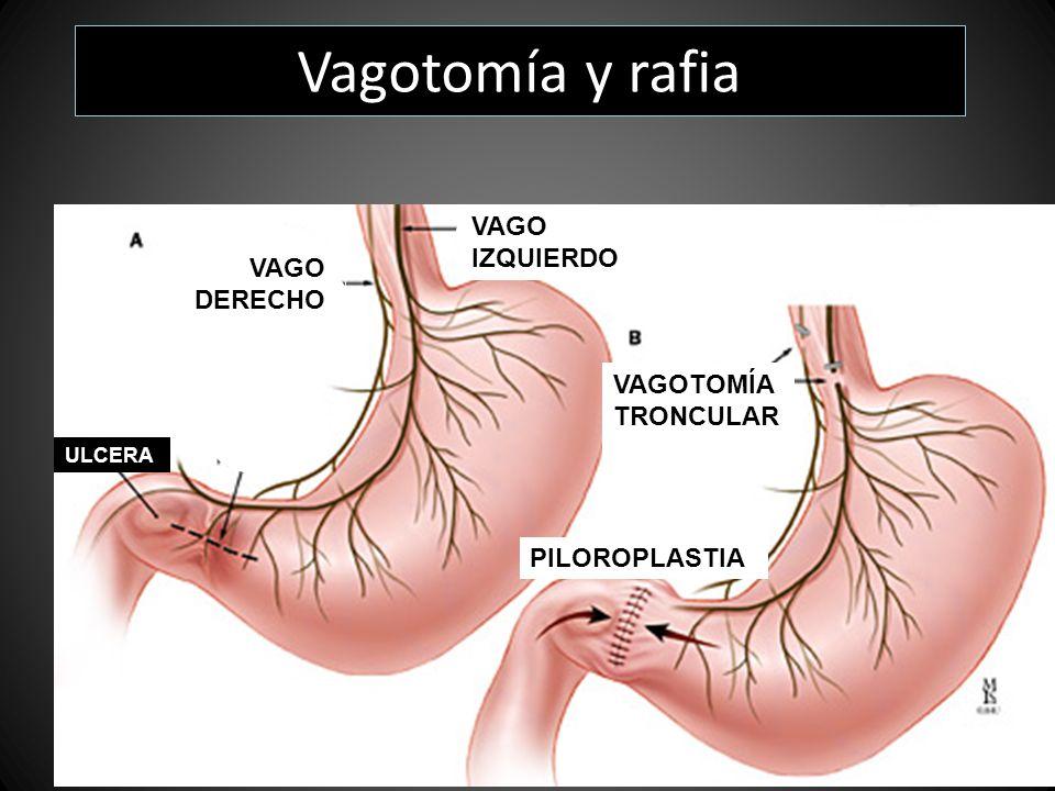 ULCERA VAGO DERECHO VAGO IZQUIERDO VAGOTOMÍA TRONCULAR PILOROPLASTIA Vagotomía y rafia