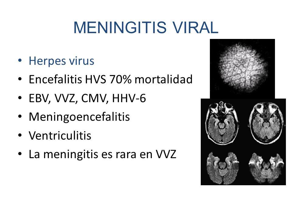 MENINGITIS VIRAL Herpes virus Encefalitis HVS 70% mortalidad EBV, VVZ, CMV, HHV-6 Meningoencefalitis Ventriculitis La meningitis es rara en VVZ