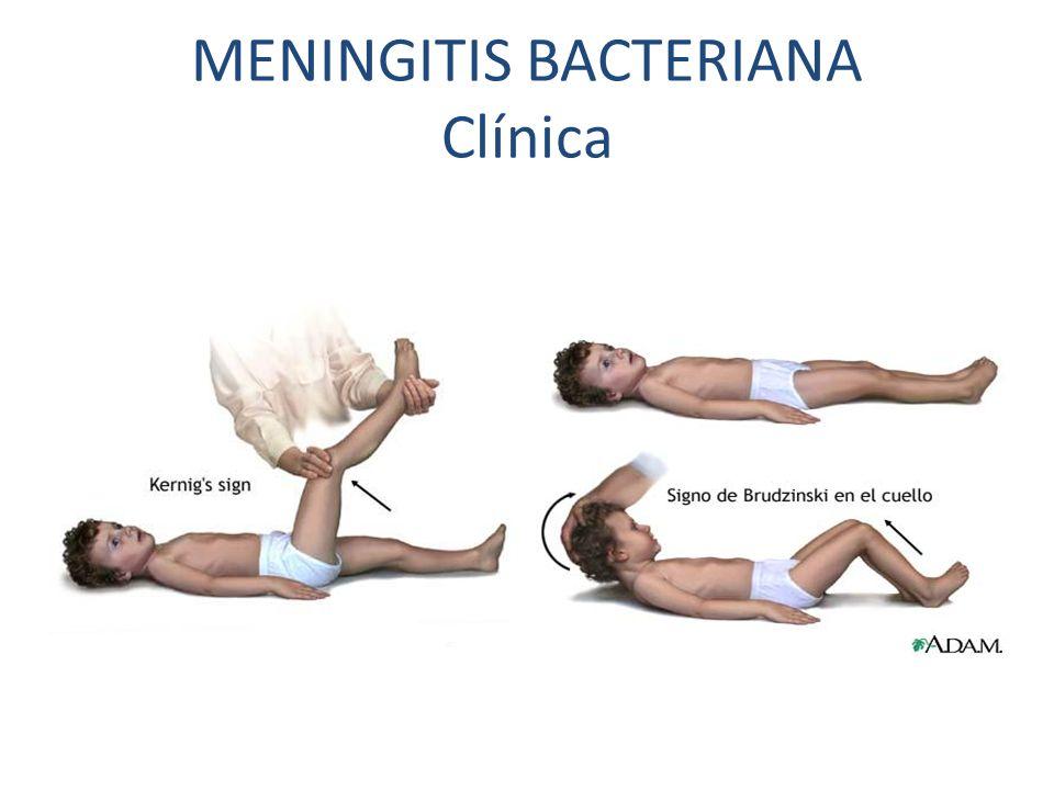 MENINGITIS BACTERIANA Clínica