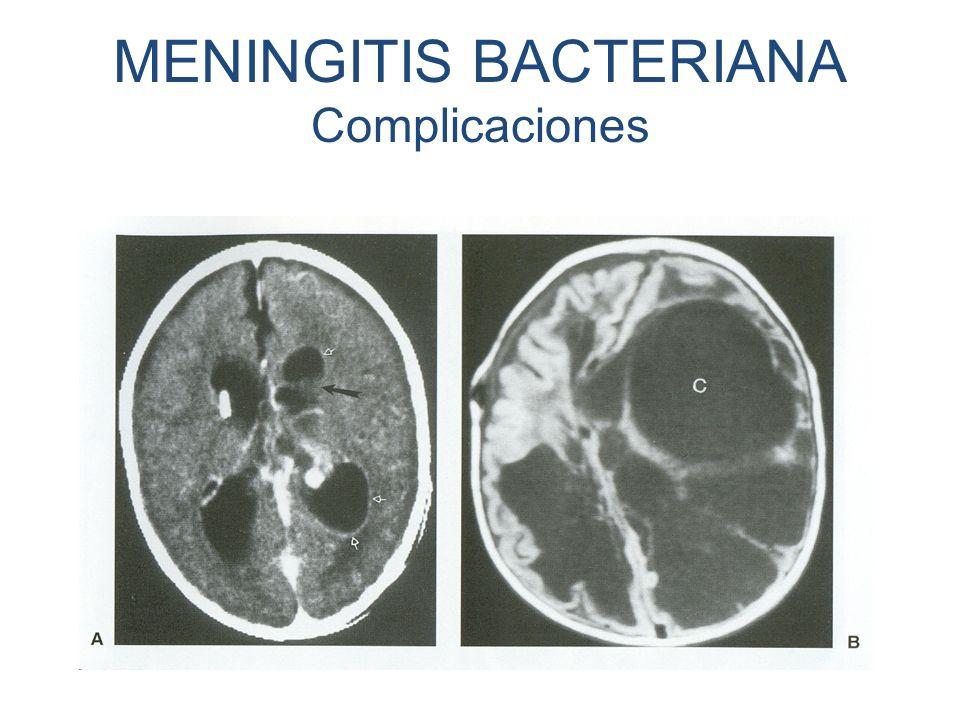 MENINGITIS BACTERIANA Complicaciones