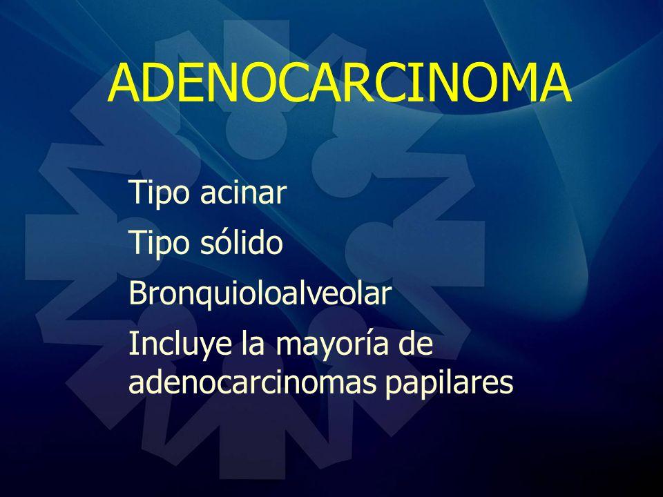 ADENOCARCINOMA Tipo acinar Tipo sólido Bronquioloalveolar Incluye la mayoría de adenocarcinomas papilares