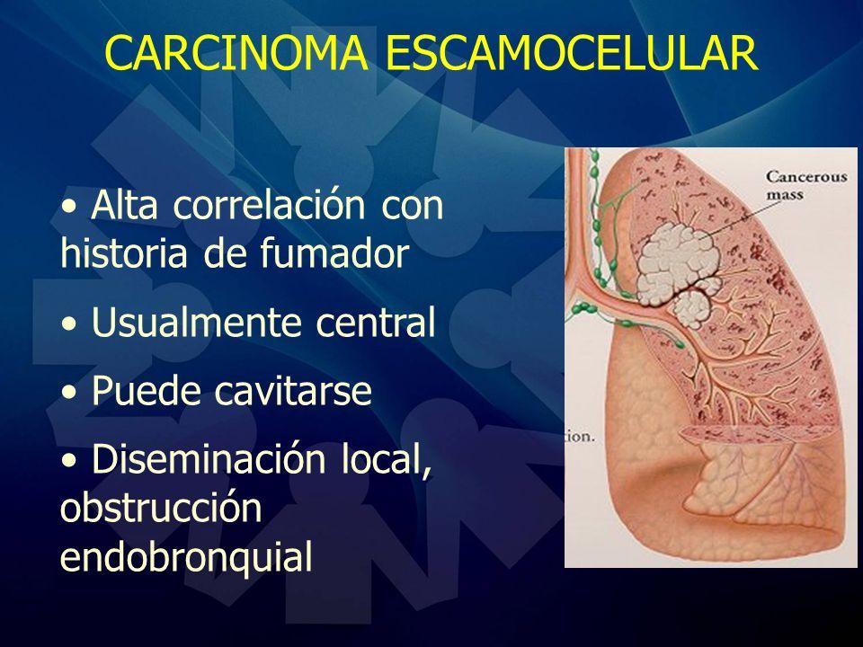 CARCINOMA ESCAMOCELULAR Alta correlación con historia de fumador Usualmente central Puede cavitarse Diseminación local, obstrucción endobronquial