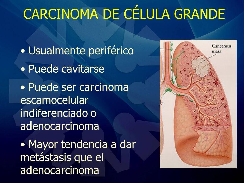CARCINOMA DE CÉLULA GRANDE Usualmente periférico Puede cavitarse Puede ser carcinoma escamocelular indiferenciado o adenocarcinoma Mayor tendencia a d