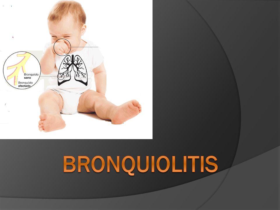 Definición El primer episodio de sibilancias asociado a evidencia clínica de infección viral y de obstrucción (aumento de volumen torácico, hiperresonancia, espiración prolongada) en un niño menor de dos años.