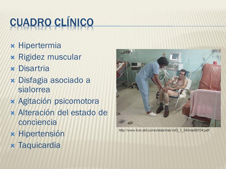 Hipertermia Rigidez muscular Disartria Disfagia asociado a sialorrea Agitación psicomotora Alteración del estado de conciencia Hipertensión Taquicardi