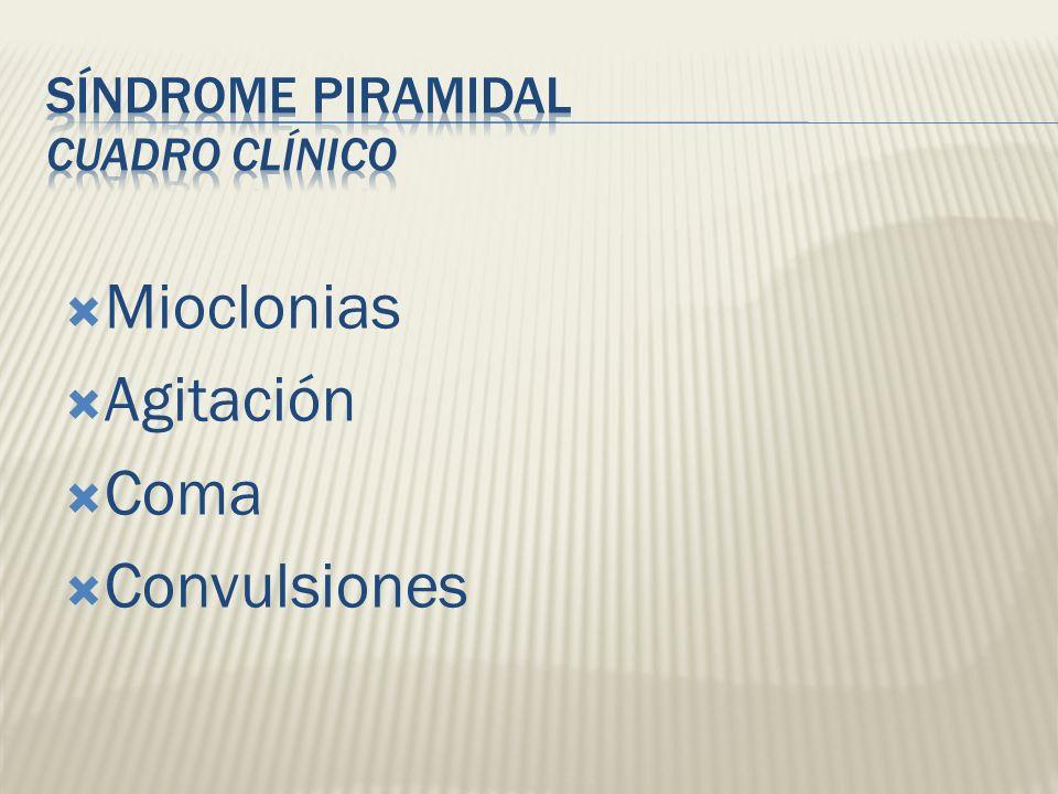 Mioclonias Agitación Coma Convulsiones