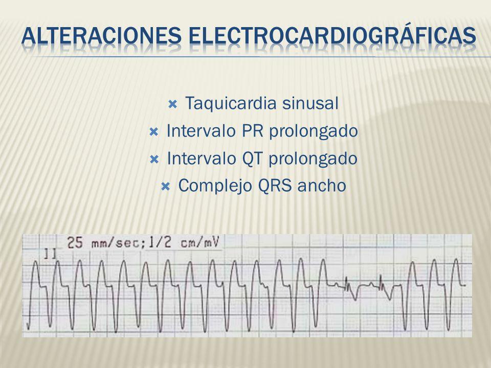 Taquicardia sinusal Intervalo PR prolongado Intervalo QT prolongado Complejo QRS ancho