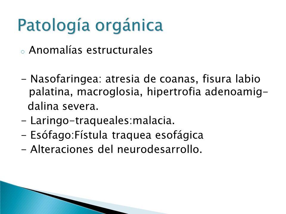 Patología orgánica o Anomalías estructurales - Nasofaringea: atresia de coanas, fisura labio palatina, macroglosia, hipertrofia adenoamig- dalina seve