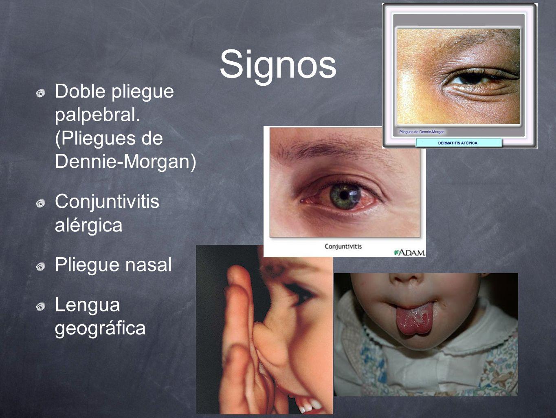 Signos Doble pliegue palpebral. (Pliegues de Dennie-Morgan) Conjuntivitis alérgica Pliegue nasal Lengua geográfica