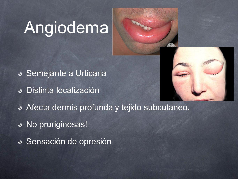Angiodema Semejante a Urticaria Distinta localización Afecta dermis profunda y tejido subcutaneo. No pruriginosas! Sensación de opresión