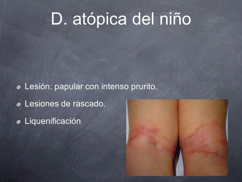 D. atópica del niño Lesión: papular con intenso prurito. Lesiones de rascado. Liquenificación