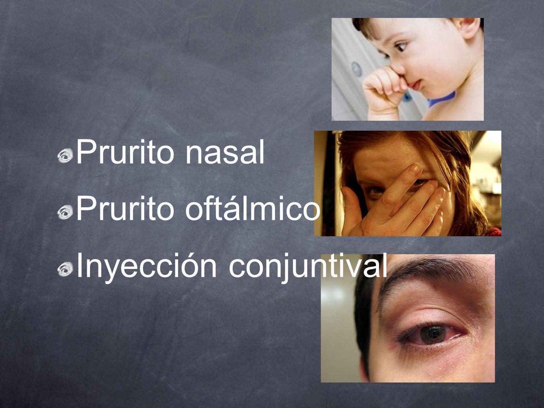 Prurito nasal Prurito oftálmico Inyección conjuntival