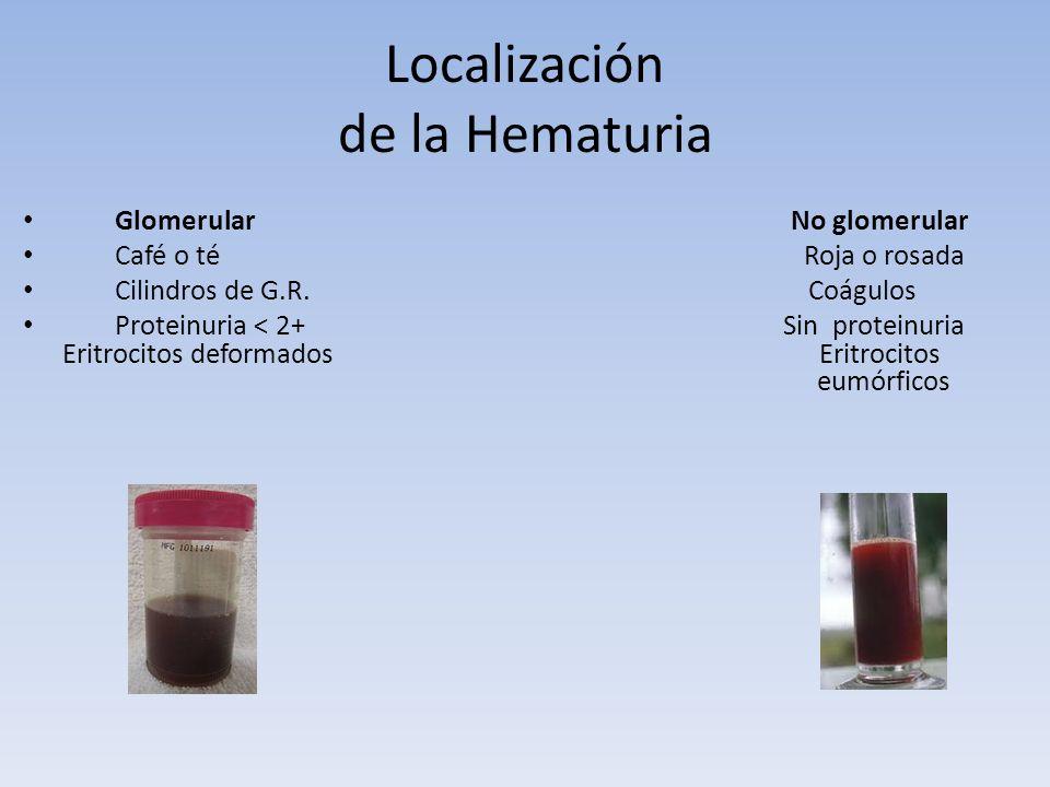 Localización de la Hematuria Glomerular No glomerular Café o té Roja o rosada Cilindros de G.R. Coágulos Proteinuria < 2+ Sin proteinuria Eritrocitos