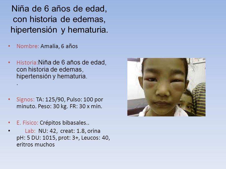 Niña de 6 años de edad, con historia de edemas, hipertensión y hematuria. Nombre: Amalia, 6 años Historia: Niña de 6 años de edad, con historia de ede