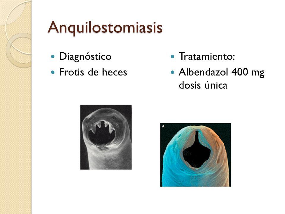 Anquilostomiasis Diagnóstico Frotis de heces Tratamiento: Albendazol 400 mg dosis única