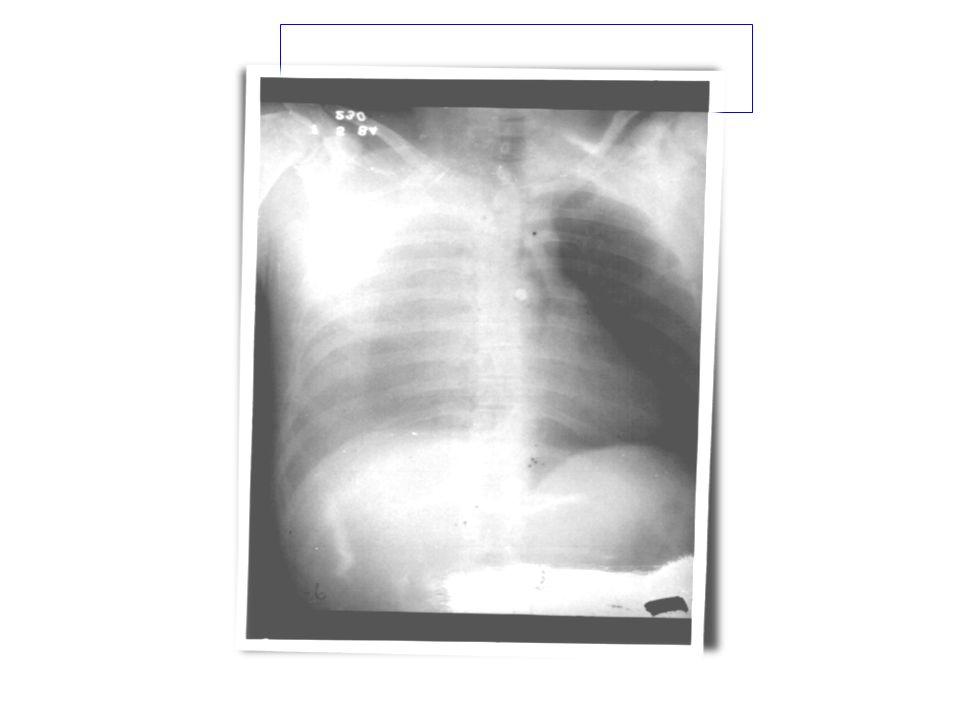 Compromiso Respiratorio Frecuencia y profundidad de la respiración Respiracion paradógica Signos externos de trauma Hundimientos torácicos Heridas ext