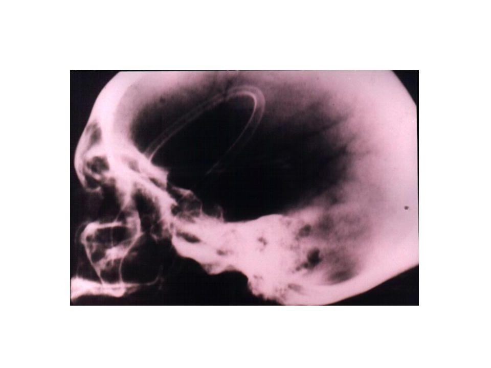 Sonda Nasogástrica Descompresión Detecta sangrado Colocar siempre que no esté contraindicado.