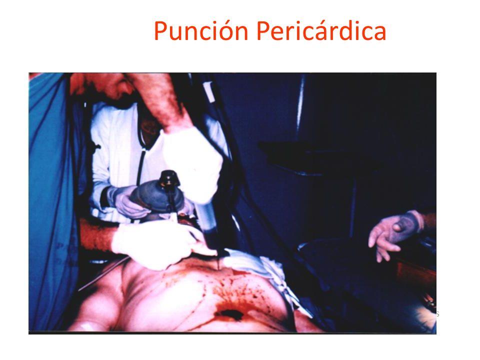 Lavado Peritoneal Indicaciones Lesión neurológica Alteración de la conciencia por alcohol o drogas Hallazgos abdominales ambiguos Fractura de pelvis o