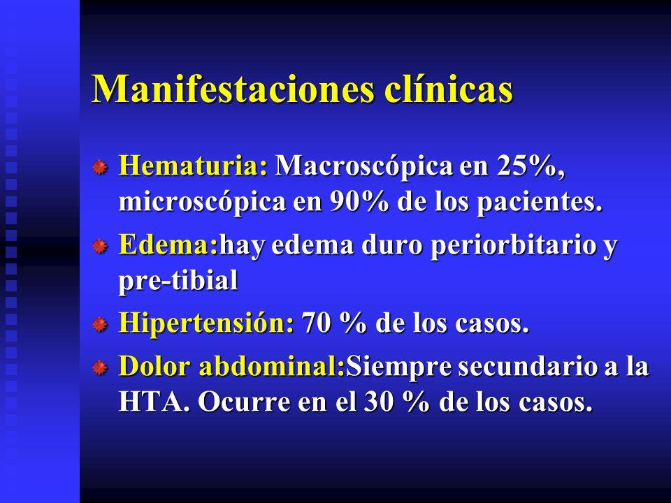 Manifestaciones clínicas Hematuria: Macroscópica en 25%, microscópica en 90% de los pacientes. Edema:hay edema duro periorbitario y pre-tibial Hiperte