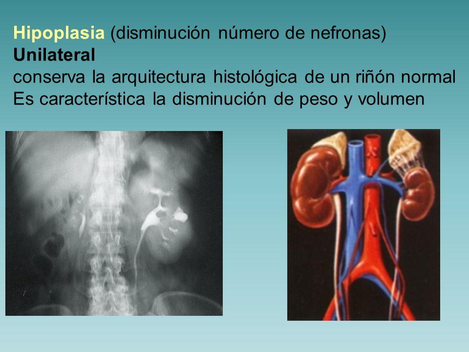 Hipoplasia Bilateral (oligomeganefronia) Riñones retraídos, sin límite claro de corteza/médula Evolucionan a IRC.