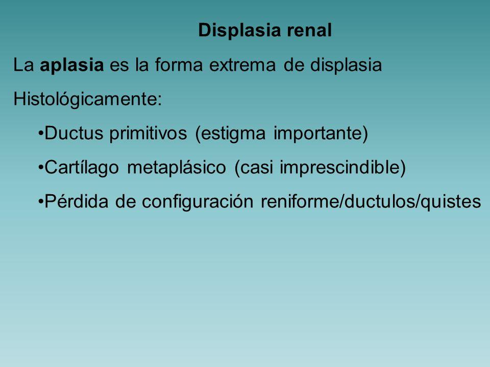 Displasia renal Todas las patologías congénitas que conllevan obstrucción pueden asociarse con displasia pero además existen dos formas clínicas de displasia bien definidas Displasia renal multiquística Quistes multiloculares