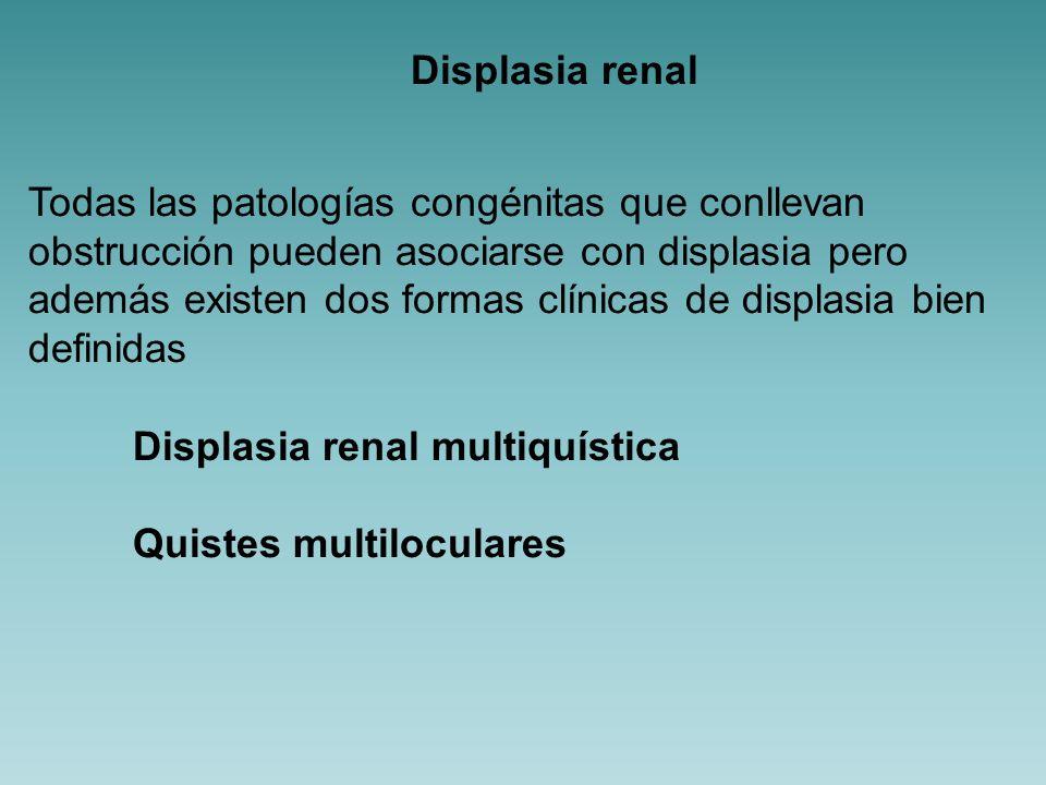 Displasia renal multiquística: Riñón no funcionante con quistes múltiples.