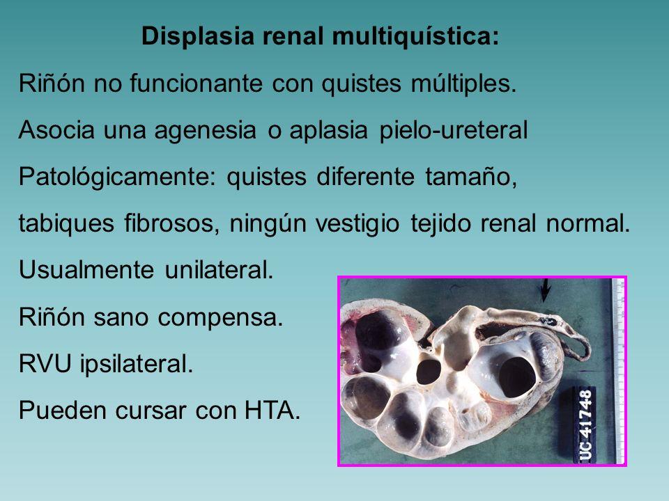 Quistes multiloculares No afecta a la totalidad del riñón.