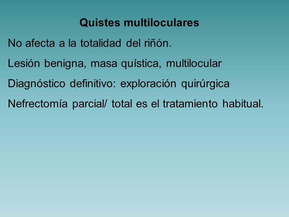 Poliquistosis renal autosómica dominante poliquistosis del adulto Incidencia (1/400-1000); 10% diálisis.