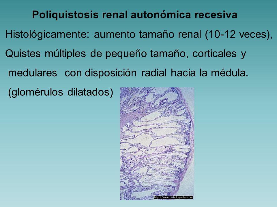 Nefronoptisis juvenil HAR, primeras 2 décadas de la vida Se asocia a alteraciones retinianas, hepáticas y hematológicas.