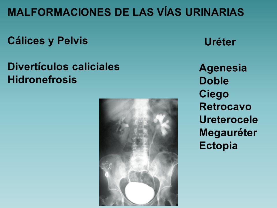 HIDRONEFROSIS CONGÉNITA ESTENOSIS UNIÓN PIELO-URETERAL Obstrucción funcional Disminución de fibras musculares y depósito colágeno Inserción anómala de uréter a pelvis