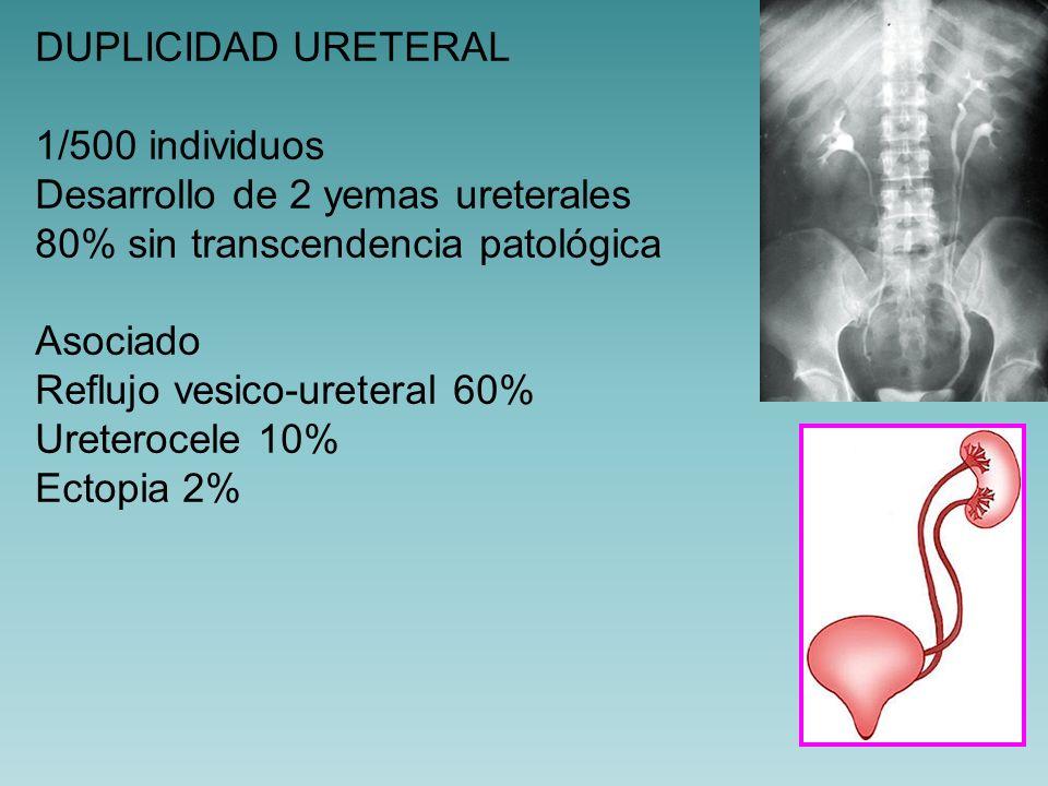 URETEROCELE Dilatación quística del trayecto intramural ECO, PIV, cistoscopia