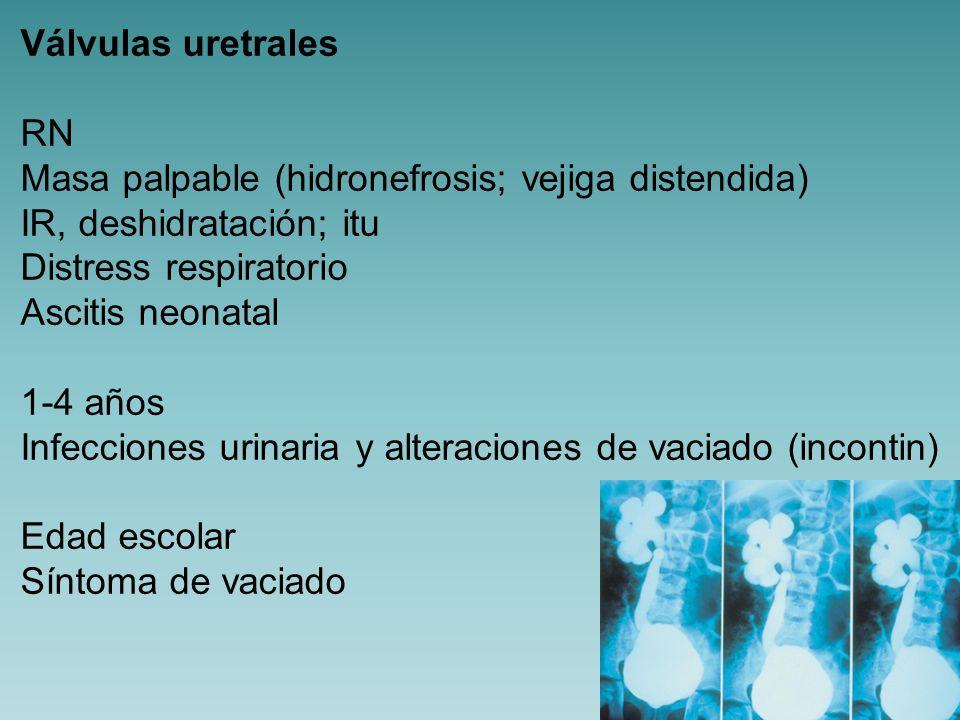 Válvulas uretrales CUMS PIV Ecografia Gammagrafía renal ESTRATEGIA DE TTO Drenaje vesical (estabilizar al niño) Resección endoscópica Vesicostomía (para recuperar la función renal)