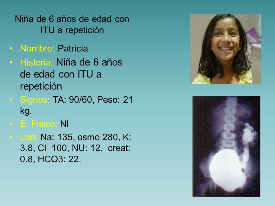 ¿ Cuál es la condición que presenta la niña.a) Megavejiga b) RVU izdo c) Ureterocele izdo.