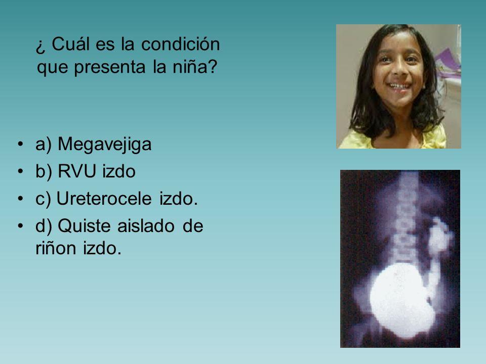 ¿ Cuál es el grado de reflujo que presenta la niña? a) I b) II c) III. d) IV.