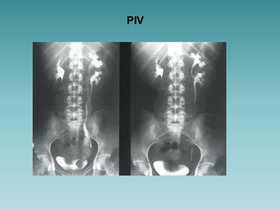 ¿ Cuál es la condición que presenta el niña.a) Ureterocele b) Hidronefrosis c) VUP.