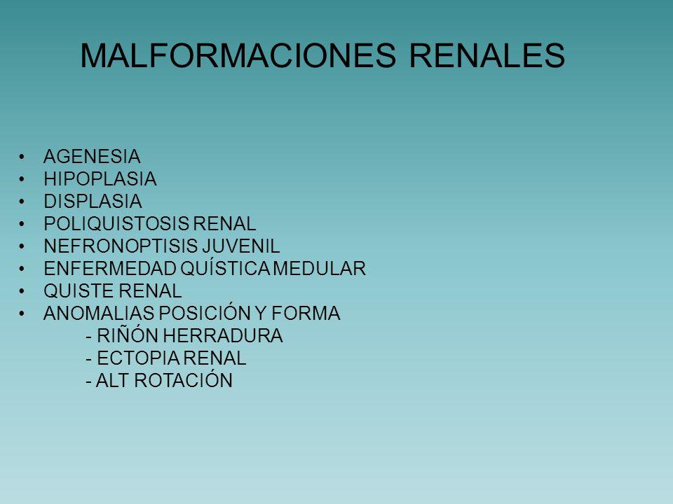 Agenesia bilateral: Extremadamente rara (1/5000-10000) Incompatible con la vida Vejiga hipoplásica (50% ausente) Oligoamnios, hipoplasia pulmonar.