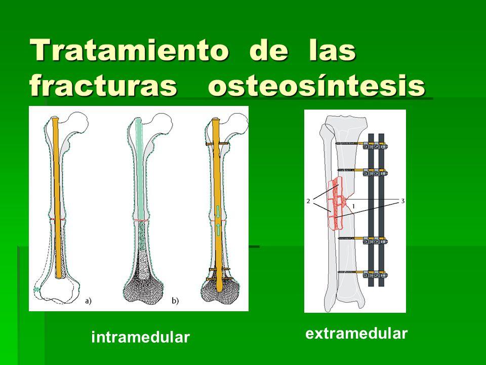 Tratamiento de las fracturas osteosíntesis intramedular extramedular