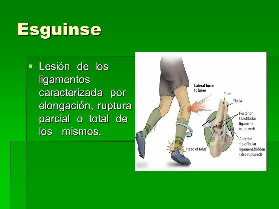 Esguinse Lesión de los ligamentos caracterizada por elongación, ruptura parcial o total de los mismos. Lesión de los ligamentos caracterizada por elon