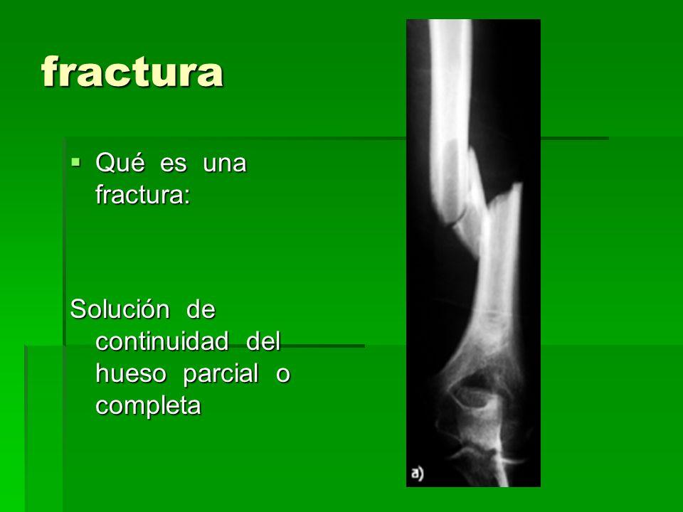 fractura Qué es una fractura: Qué es una fractura: Solución de continuidad del hueso parcial o completa