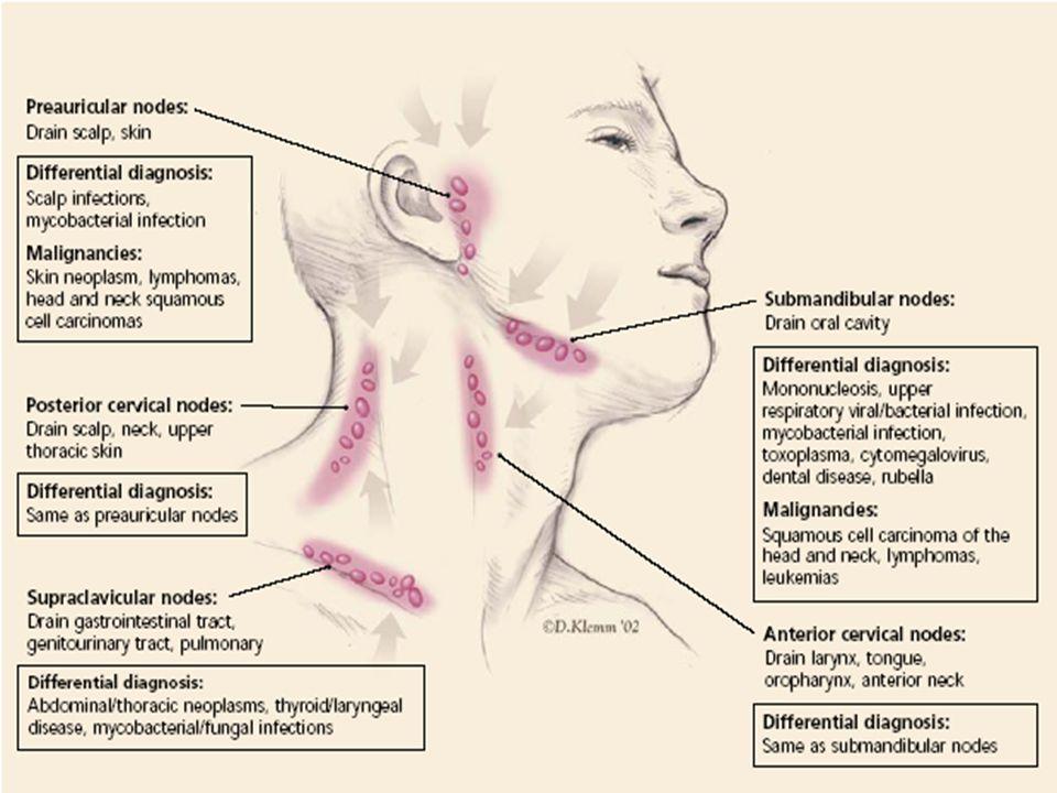 Enfermedad de Hodgkin Ganglios Linfáticos Cervicales y Supra- claviculares Agrandados en Enfermedad de Hodgkin Ganglios Linfáticos Cervicales y Supra- claviculares Agrandados en Enfermedad de Hodgkin